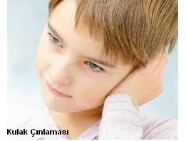 kulak çınlaması - kulak neden çınlar - kulak çınlaması nasıl geçer