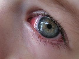 göz kanlanması neden olur, göz kızarıklığı