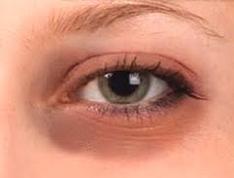 gözün yorulması