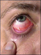 akut konjonktivit nedir, göz çapaklanması, gözlerde çapaklanma, gözün devamlı çapaklanması