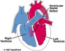 vsd , ventriküler septal defekt