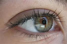 gözde ağrının nedeni nedir gözümün etrafı ağrıyor neden olabilir gözün çevresindeki ağrıların nedenleri nelerdir