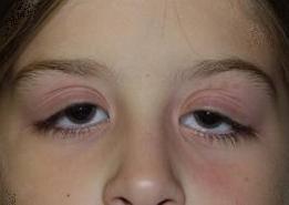 göz kapakları neden şişer göz kapaklarında şişlik neden olur
