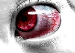 göz ağrısı için tavsiyeler nelerdir göz ağrısı nasıl geçer göz ağrısına ne iyi gelir göz ağrısının tedavisi
