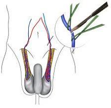 varikosel nasıl ameliyat edilir varikosel nasıl tedavi edilir