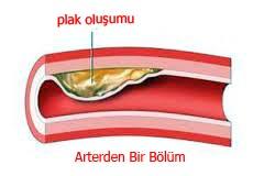 kolesterol tedavisi yüksek kolesterol nasıl düşürülür kolesterolüm yüksek çıkıyor ne yapabilirim