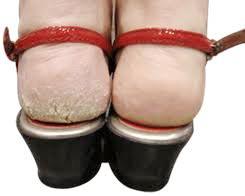 Bacak Arası Terleme Nasıl Gıderılır