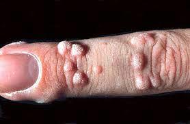 siğiller nasıl geçer siğil nedir siğil nasıl tedavi edilir