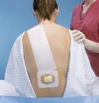 epidural anestezi epidural doğum