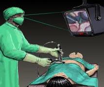 pelvik enfeksiyon nedir  pelvisin iltihaplanması