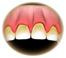 Plak nedir diş plağı nasıl oluşur dişlerdeki sarı lekeler