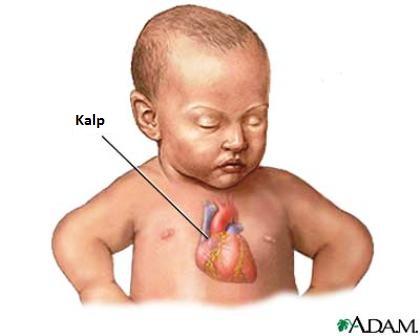çocuk kalbi kalp yetmezliği