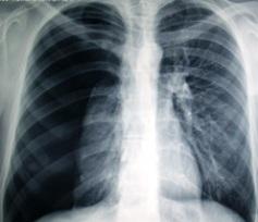 pnömotoraks akciğer resmi