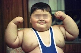 obezite nedir , şişmanlama , çocuklarda şişmanlık